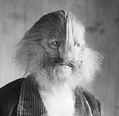 Stephan Bibrowski, also known as Lionel the Lion-Faced Man, had congenital terminal hypertrichosis.